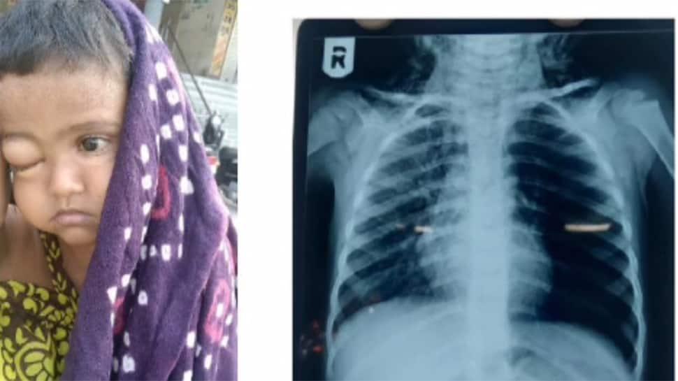 એક મકાઇનાં દાણાને કારણે જાત 3 વર્ષનાં બાળકનો જીવ, આવી રીતે બચ્યો જીવ