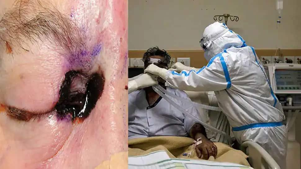 વડોદરામા મ્યુકોરમાઈકોસિસના દર્દી એટલા વધ્યા કે ઉભો કરવો પડ્યો નવો વોર્ડ