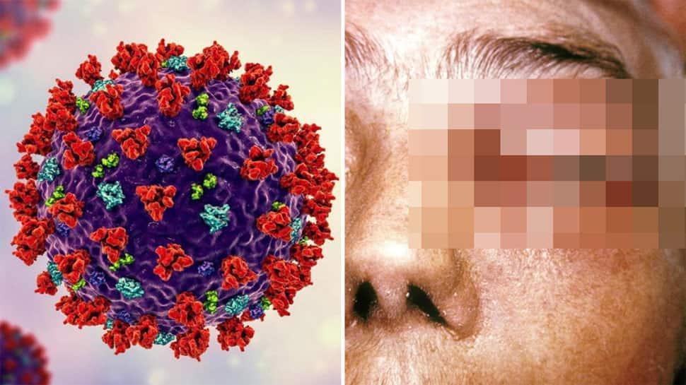 જો તમે ડાયાબિટીસના દર્દી હશો તો મ્યુકોરમાઈકોસિસ તમારા શરીરના આ અંગને ખોખલું કરી દેશે
