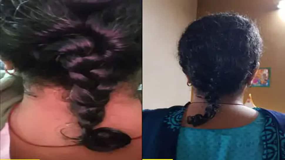 કોરોનાની વધુ એક સાઈડ ઈફેક્ટ, દિવસમાં 100 થી વધુ વાળ ઉતરે તો ચેતી જજો