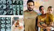 Ahmedabad: 18 માસની બાળકીના પેટમાંથી દૂર કરાયું 400 ગ્રામનું અવિકસિત ભ્રુણ, બાળકીને મળ્યું નવજીવન