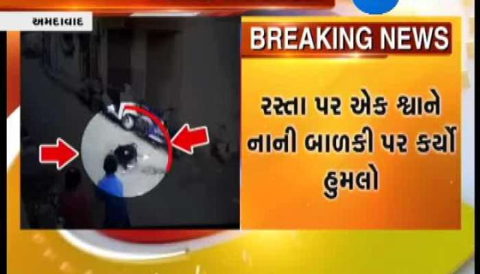 Ahmedabad Dog Biting Girl Caught In CCTV