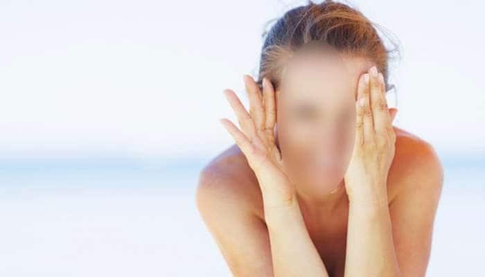 સાપની કાચળી ઉતરે તેમ મેકઅપ કર્યા બાદ ઉતરી યુવતીની ચામડી, સુરતનો ચોંકાવનારો કિસ્સો