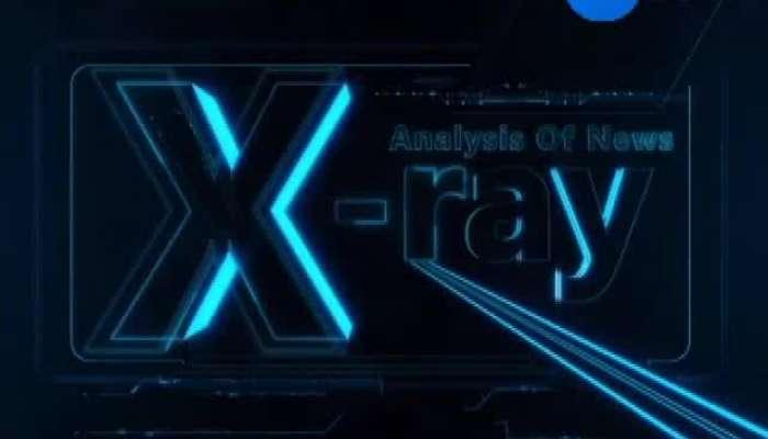 X Ray News 25062019