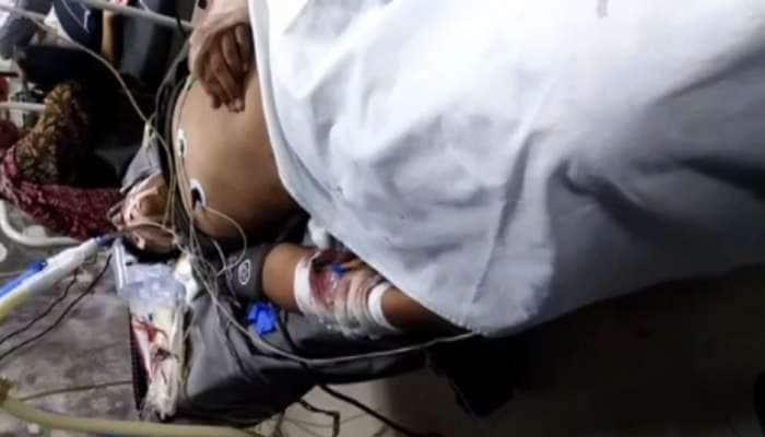 અમદાવાદ રાઈડ અકસ્માતને કારણે એક માસુમનો પગ કપાયો, હવે આજીવન અપંગ બનીને રહેવું પડશે