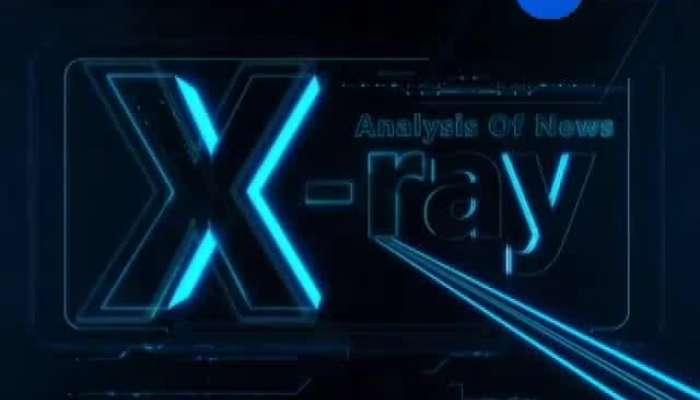 X Ray 23_ 07_19