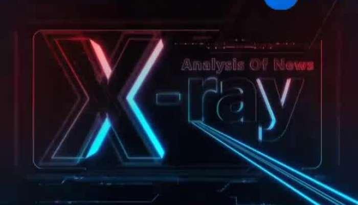 X ray 01102019