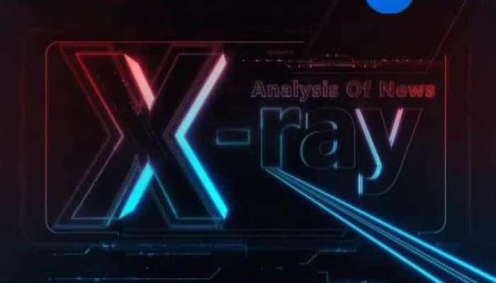 X Ray 23-10-2019