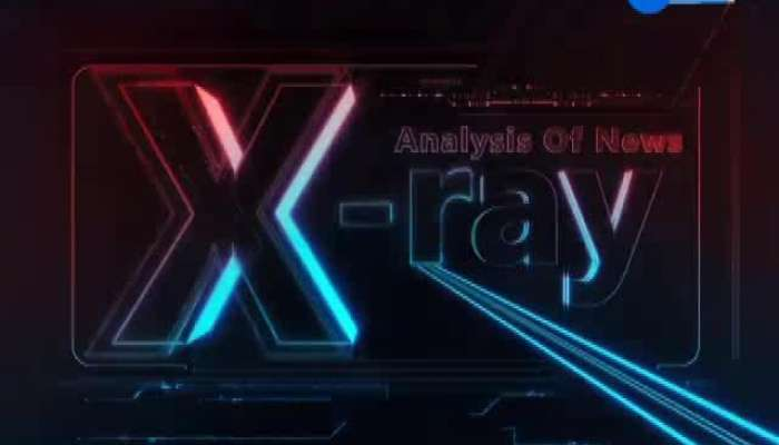 X Ray 02 Nov 2019