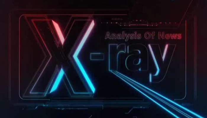 X Ray 19 Dec 2019
