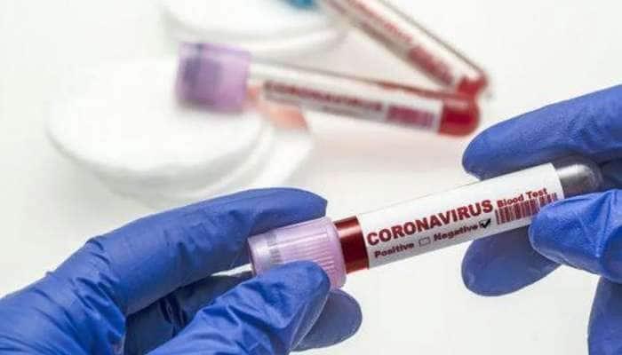 Coronaupdate: છેલ્લા 24 કલાકમાં 540 કેસ, 340 દર્દી ડિસ્ચાર્જ; મૃત્યુઆંત 1600ને પાર