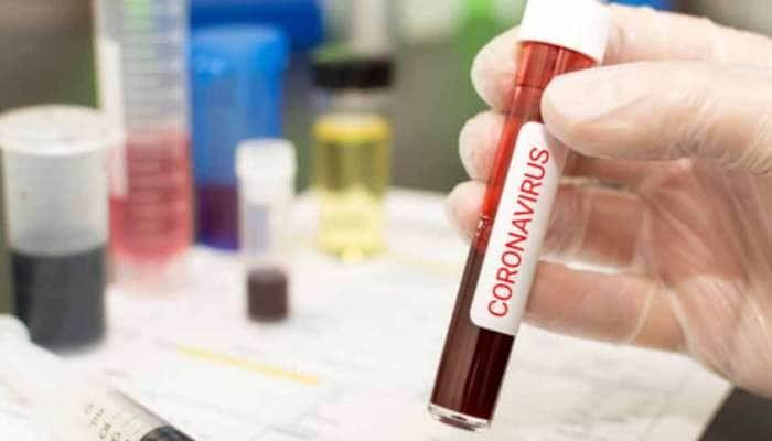 વડોદરામાં કોરોનાના વધુ 79 પોઝિટિવ કેસ નોંધાયા, 2 દર્દીઓના મોત નિપજ્યા