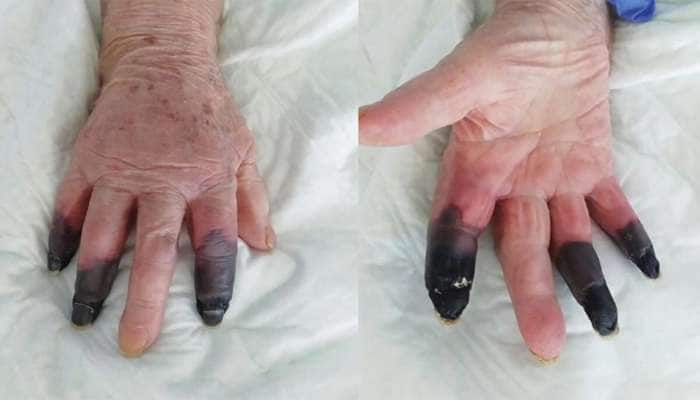 Corona Virus ની ભયંકર આડ અસર સામે આવી, મહિલાની 3 આંગળી કાપવી પડી
