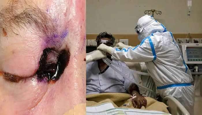 સુરતમાં મ્યુકોરમાઈકોસિસ જીવલેણ બન્યો, 20 દર્દીએ આંખોની રોશની ગુમાવી