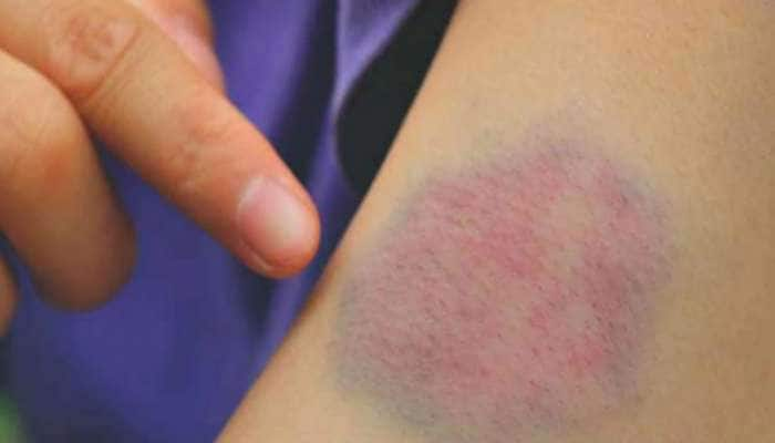 Corona દર્દીઓ માટે Blood Clots કેમ બની રહ્યુ છે સમસ્યા? જાણો નિષ્ણાતોએ શું કહ્યું...