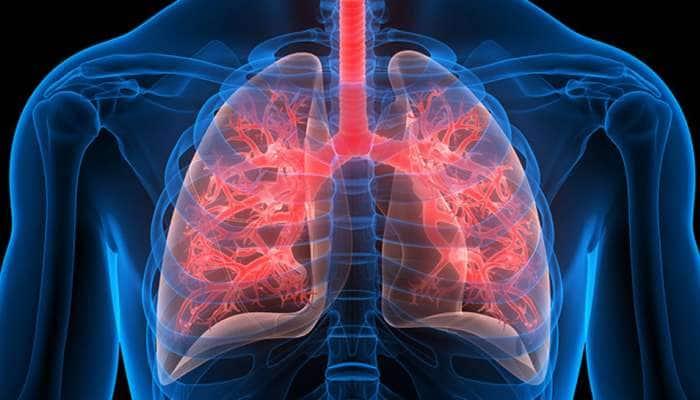 Harmful Food For Lungs: આ 5 વસ્તુઓ ફેફસાંને કરી દેશે ખરાબ, જલ્દી જાણી લો આ વાત